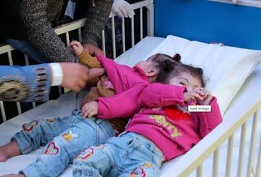 بالصور.. التوأم السيامي المصري تصلان إلى مستشفى الحرس الوطني والربيعة يطمئن عليهما
